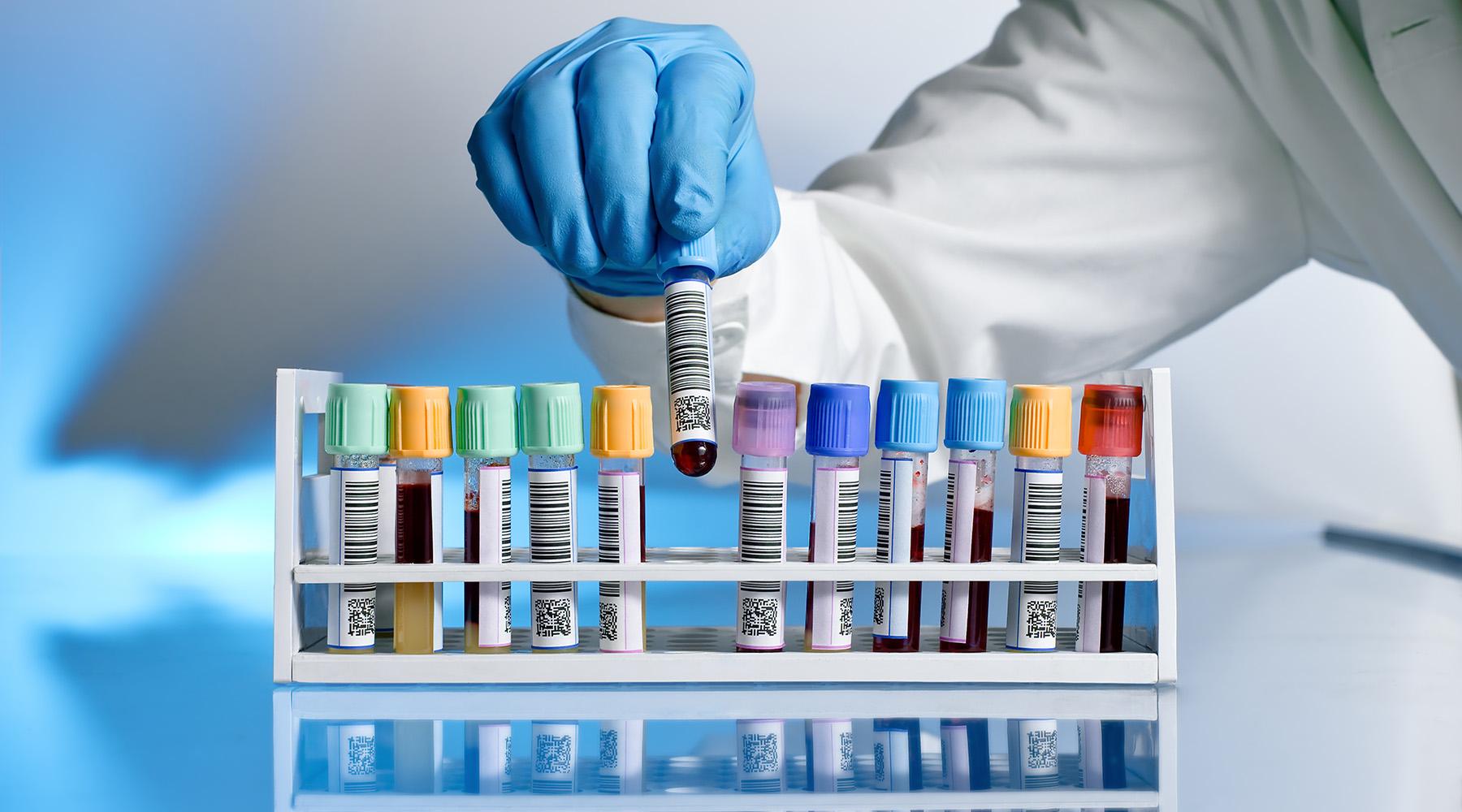 especialização em análises clínicas - análises clínicas em pelotas